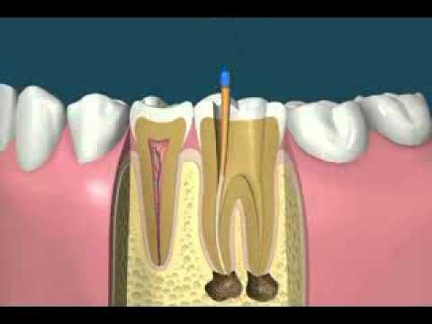 看完牙齒怎麼酸酸的...兩分鐘搞懂根管治療