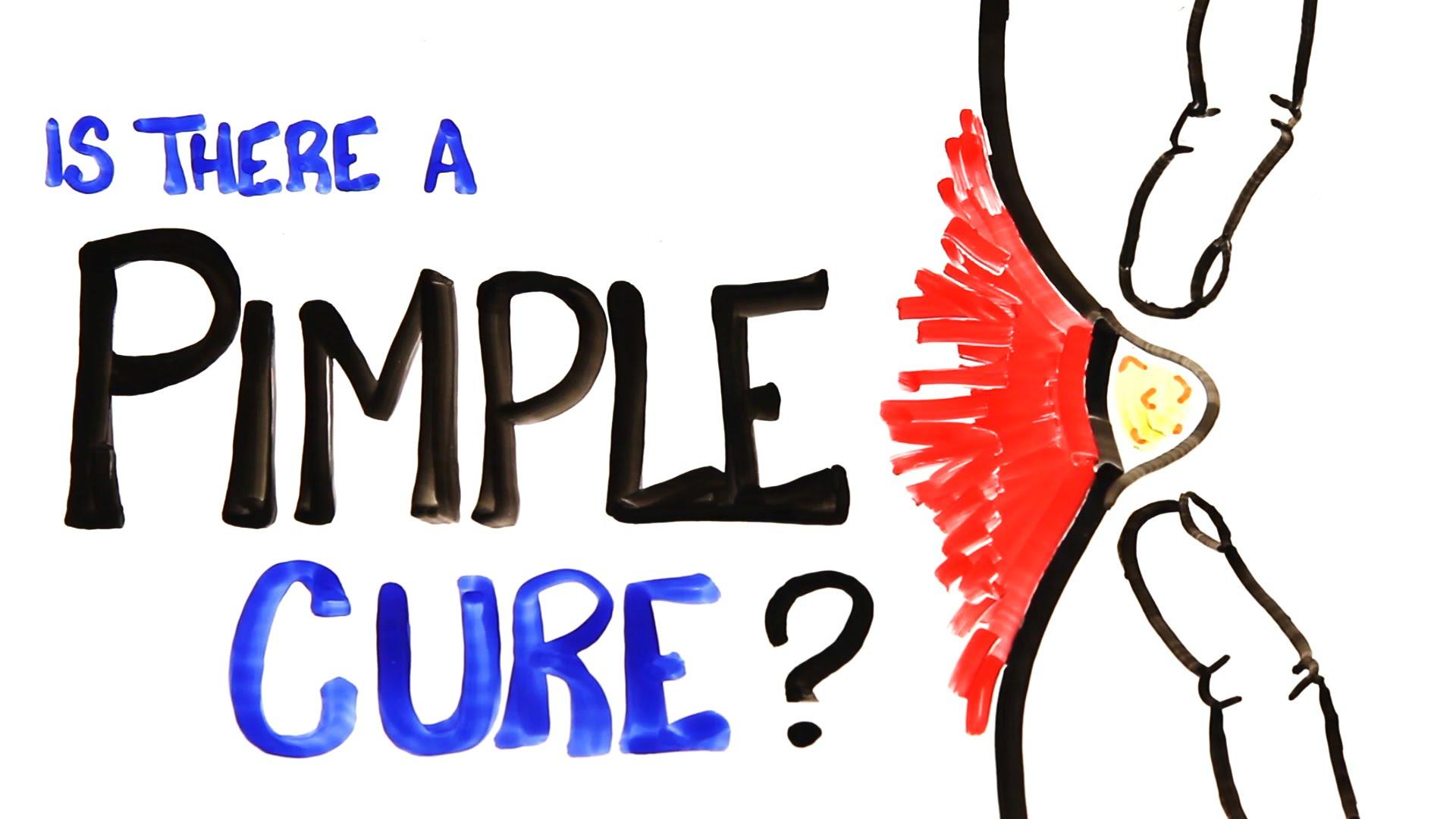 「【科學報你知】滿臉痘花有救嗎?」- Is There a Pimple Cure?